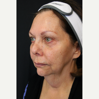67 year old woman treated with Vertical Vector Lower Face Lift under Tumescent Anesthesia before 3701710