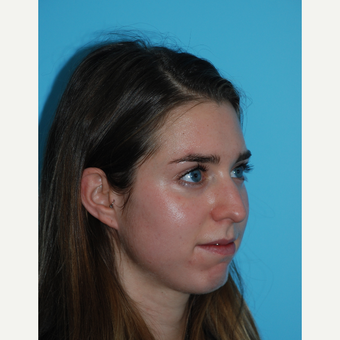 24 year old woman after rhinoplasty one month ago before 3140076