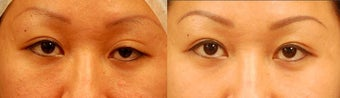Asian Eyelid Surgery for Ptosis before 894631