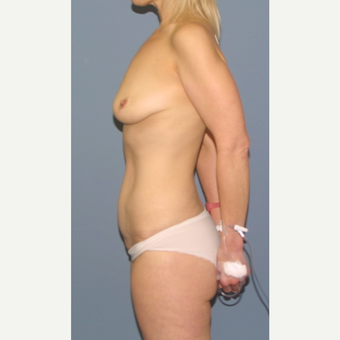45-54 year old woman treated with Breast Lift with Implants before 3502495