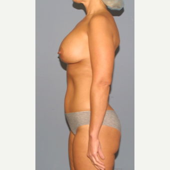 45-54 year old woman treated with Breast Lift with Implants after 3502495