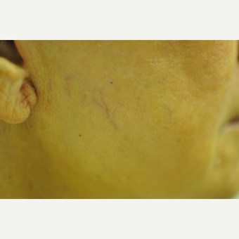 65-74 year old woman treated with Laser Surgery