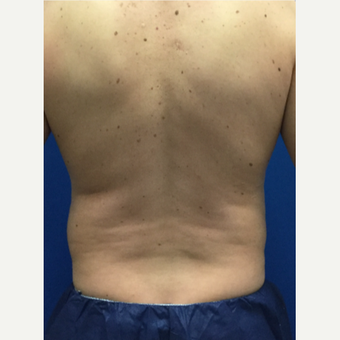 Male patient treated with Laser Liposuction before 3071895