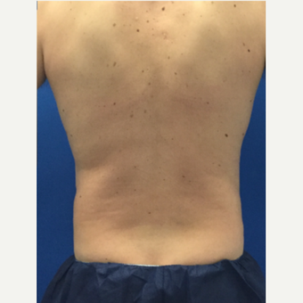 Male patient treated with Laser Liposuction after 3071895