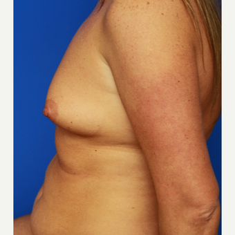 32- year old woman treated with Breast Augmentation before 3108713