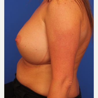 32- year old woman treated with Breast Augmentation after 3108713