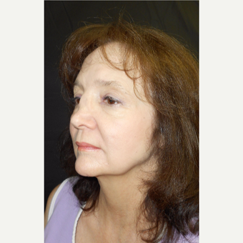 55-64 year old woman treated with Revision Rhinoplasty before 3187218