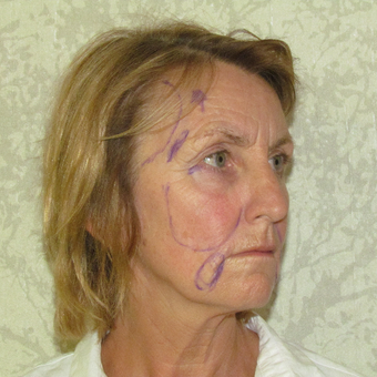 55-64 year old woman treated with Facelift before 3271682