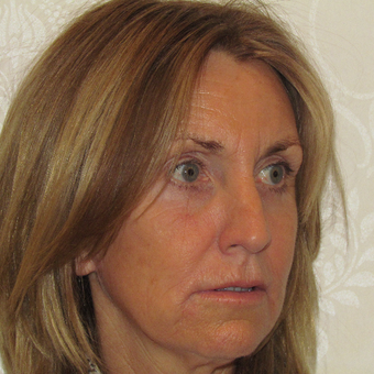 55-64 year old woman treated with Facelift after 3271682
