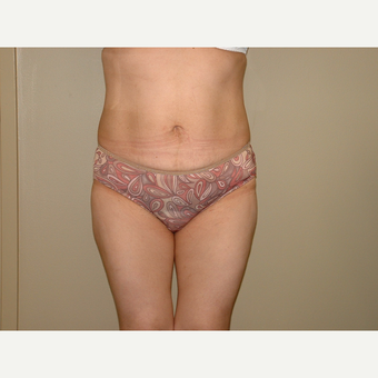 25-34 year old woman treated with Liposuction after 3454761