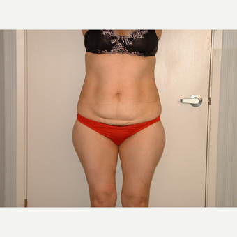 25-34 year old woman treated with Liposuction before 3454761