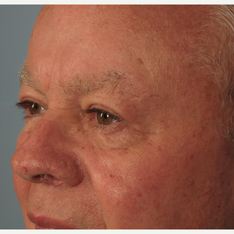 65-74 year old man treated with Eyelid Surgery after 3074760