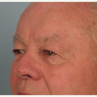 65-74 year old man treated with Eyelid Surgery before 3074760