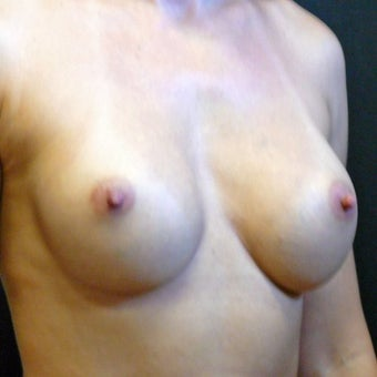 Breast Correction 991325