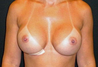 Breast Correction