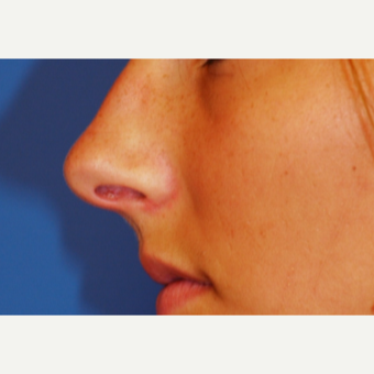 25-34 year old woman treated with Rhinoplasty before 3619283