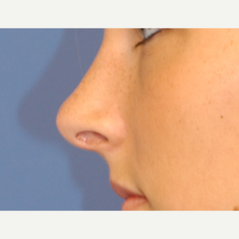 25-34 year old woman treated with Rhinoplasty after 3619283