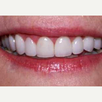 Porcelain Veneers with Gum Lift after 1784505