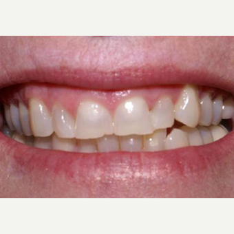 Porcelain Veneers with Gum Lift before 1784505