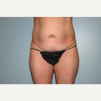 55-64 year old woman treated with Tummy Tuck before 3339632