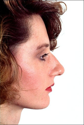Rhinoplasty before 1023289