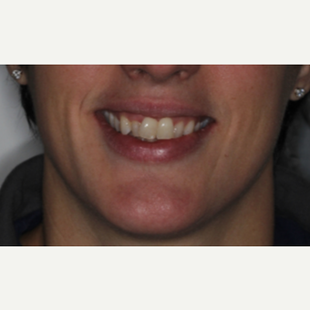 35-44 year old woman treated with Invisalign before 3135613