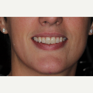 35-44 year old woman treated with Invisalign after 3135613