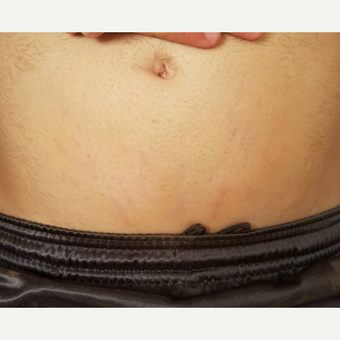 18-24 year old man treated with Stretch Marks Device