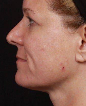 Skin Tightening in the Face and Neck