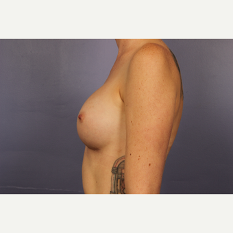 25-34 year old woman treated with Breast Implants after 3110205