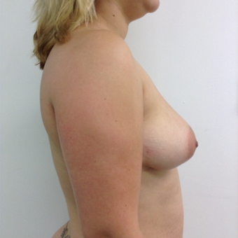 25-34 year old woman treated with Breast Augmentation before 3767376