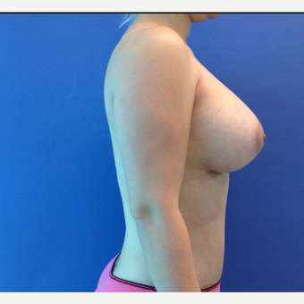 25-34 year old woman treated with Breast Augmentation after 3767376
