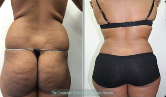 Vaser Liposuction before 2092366