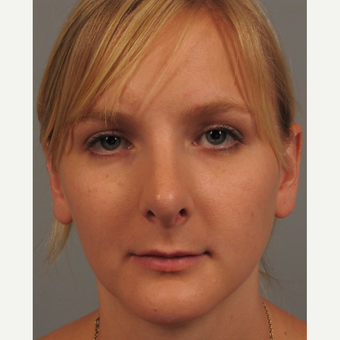 18-24 year old woman treated with Chin Surgery and Rhinoplasty after 3344151