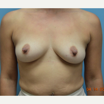 35-44 year old woman treated with Natrelle Breast Implants before 3261497