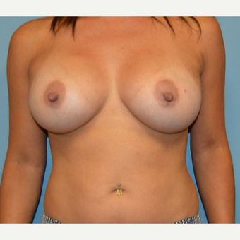 35-44 year old woman treated with Natrelle Breast Implants after 3261497