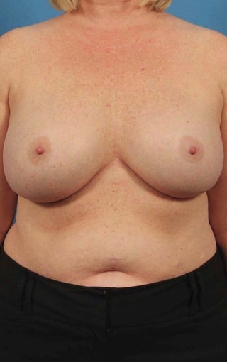 35-44 year old woman treated with Breast Implant Removal before 1594274