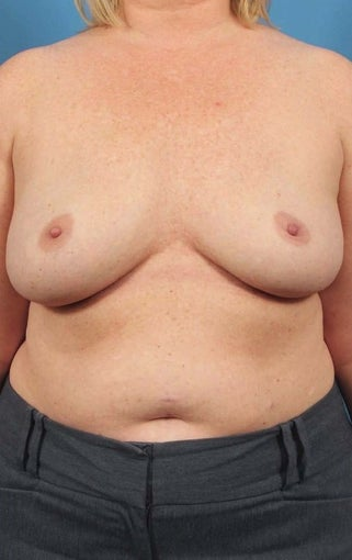 35-44 year old woman treated with Breast Implant Removal after 1594274