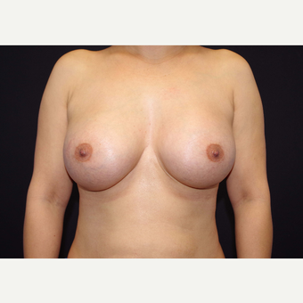 35-44 year old woman treated with Breast Implants after 3441099