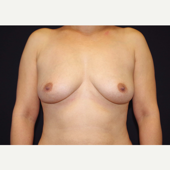 35-44 year old woman treated with Breast Implants before 3441099