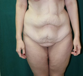 25-34 year old woman treated with a belt lipectomy before 3460050
