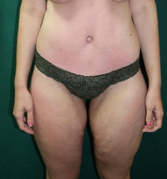 25-34 year old woman treated with a belt lipectomy after 3460050