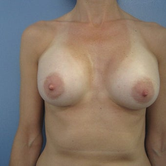 45-54 year old woman treated with Breast Augmentation after 1685068