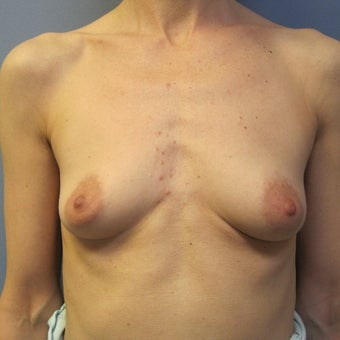 45-54 year old woman treated with Breast Augmentation before 1685068