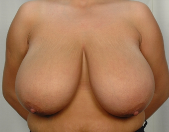 28 year old woman treated with Breast Reduction before 3026851