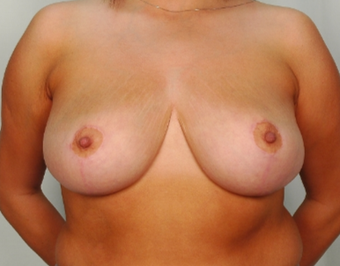 28 year old woman treated with Breast Reduction after 3026851