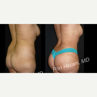 35-44 year old woman treated with Liposuction before 3720936