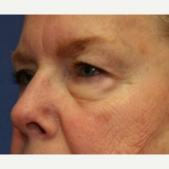 72 year old woman with Eyelid Surgery before 3588870