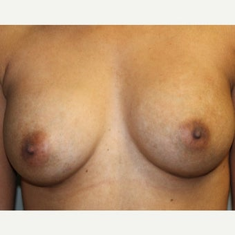 25-34 year old woman treated with Breast Augmentation before 1808545