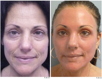 Double Deep FX Laser Resurfacing before 1051106